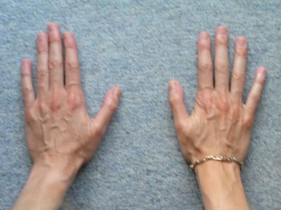 viti06 Vitiligo Gene Expression